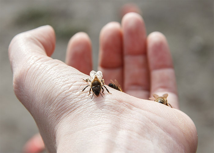 Gonfiore puntura vespa quanto dura